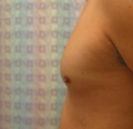 before chest lipo