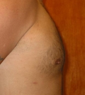 after chest lipo